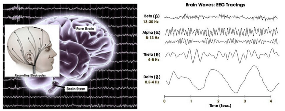EEG Composite Diagram