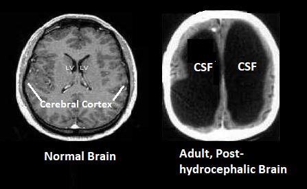 Hydroceph Brain